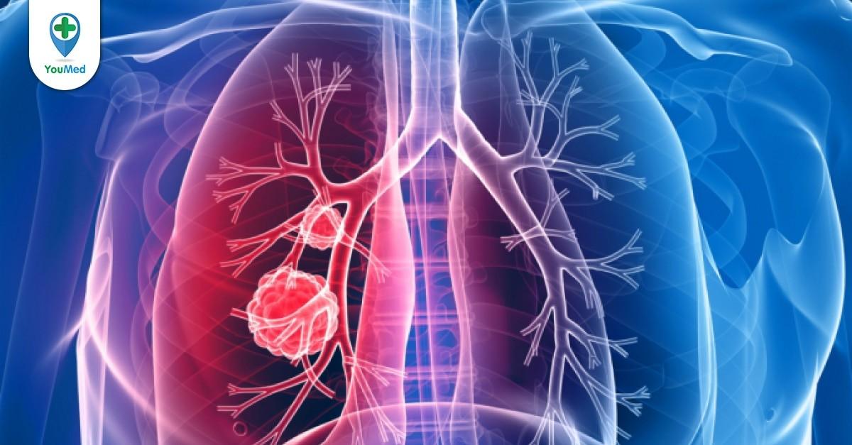 Tổng quan về ung thư phổi di căn hạch trung thất