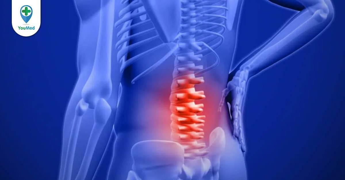 Co thắt cơ: khi nào cần dùng thuốc giảm đau?