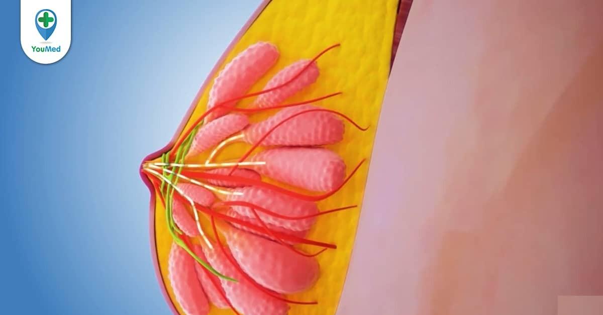 Ung thư vú tái phát: triệu chứng, chẩn đoán và cách điều trị