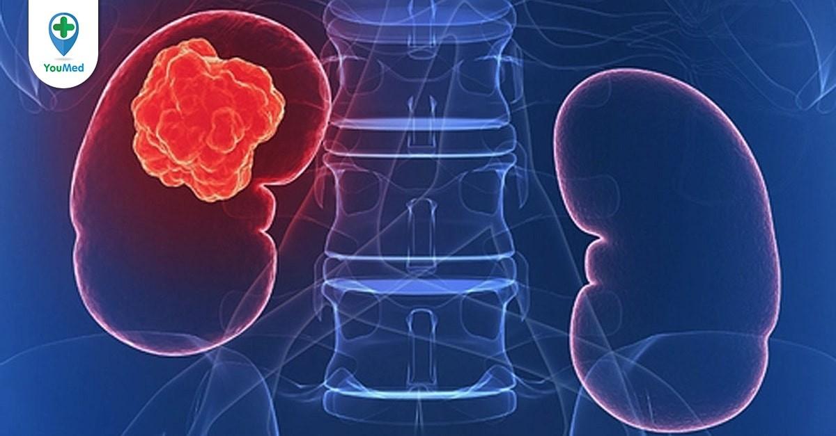 Ung thư thận sống được bao lâu và câu trả lời từ bác sĩ