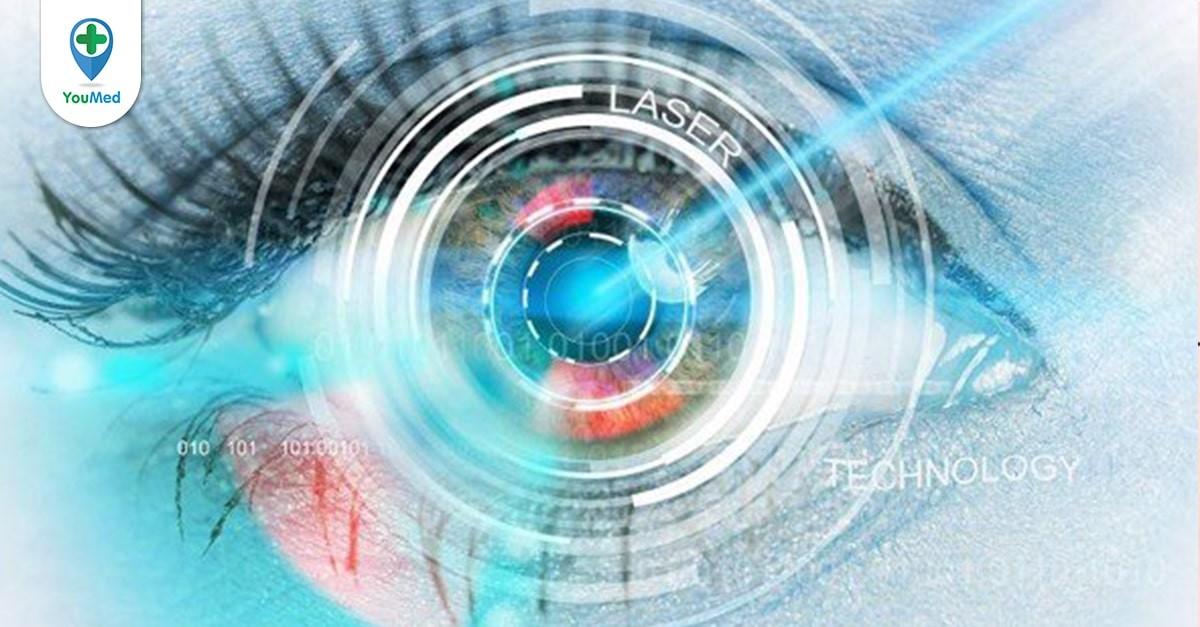 Mổ mắt cận thị và những điều cần biết