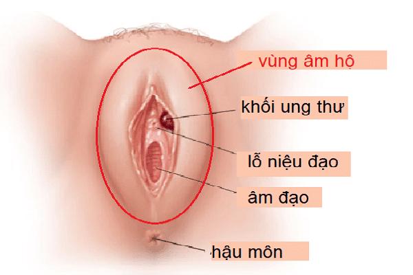 Ung thư âm đạo