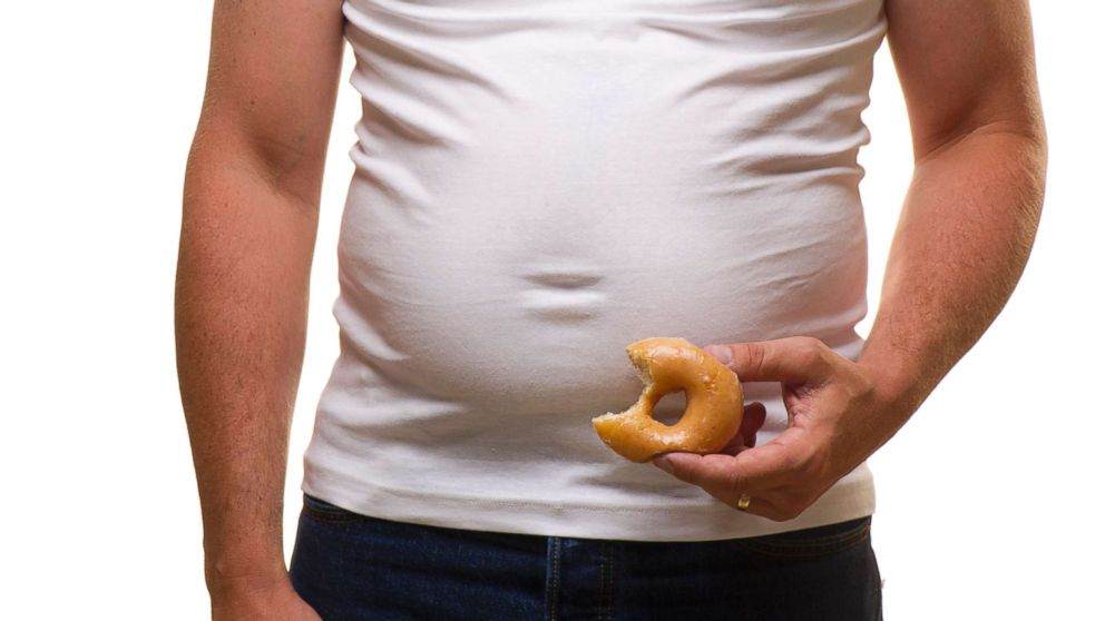 béo phì là một trong các yếu tố nguy cơ dẫn đến ung thư tuyến tiền liệt