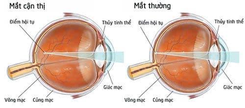 Hiểu đúng về cận thị và cách chữa cận thị