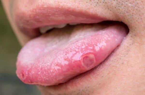 cách nhận biết ung thư lưỡi