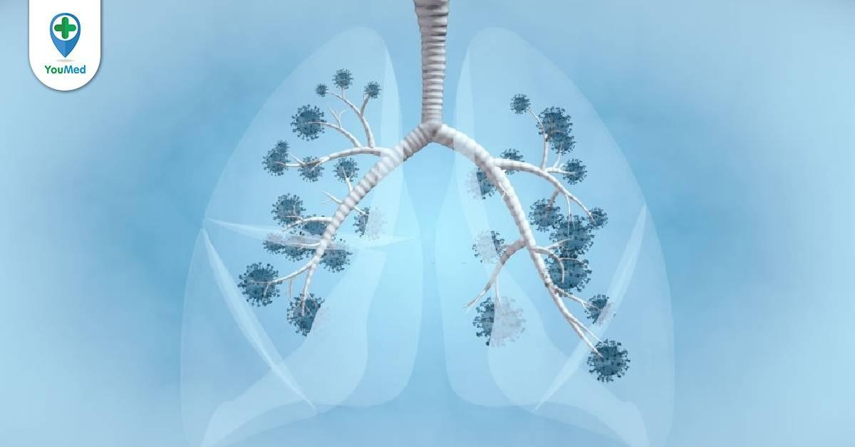 Ung thư phổi không tế bào nhỏ: loại ung thư phổi phổ biến nhất