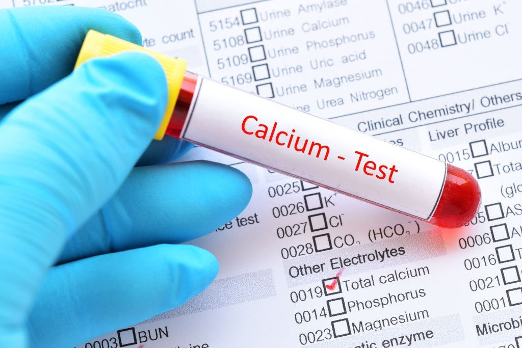 Mức bình thường của canxi trong máu là 8,5–10,2 mg/dl