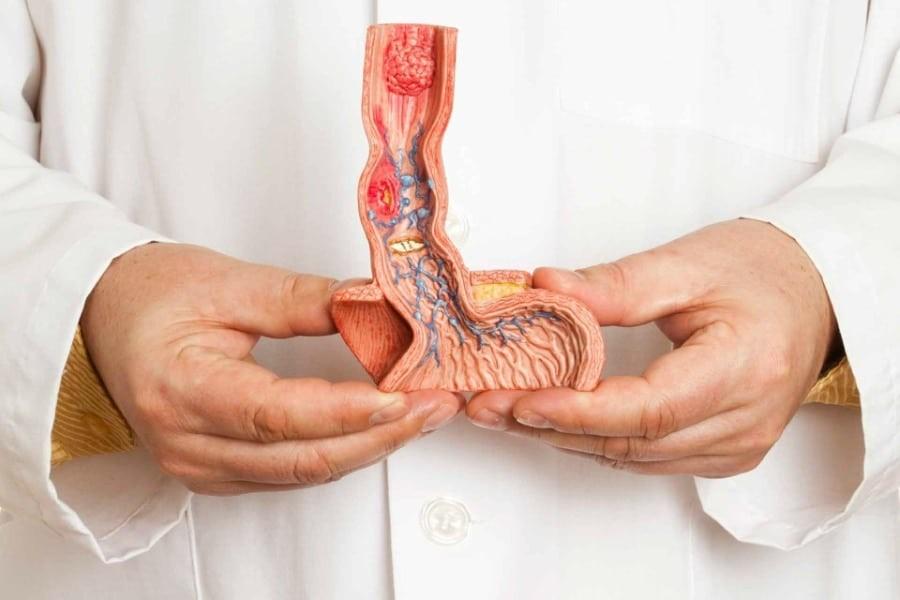 Tinh trùng có mùi bất thường nếu không được điều trị có thể dẫn đến ung thư dương vật