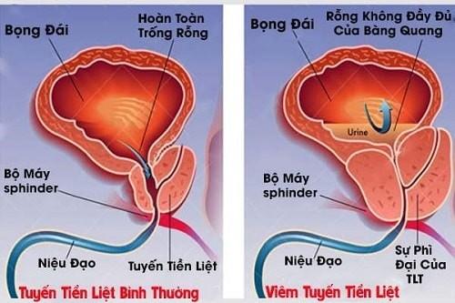 Viêm tiền liệt tuyến có thể gây ra tình trạng tinh dịch bị vón cục