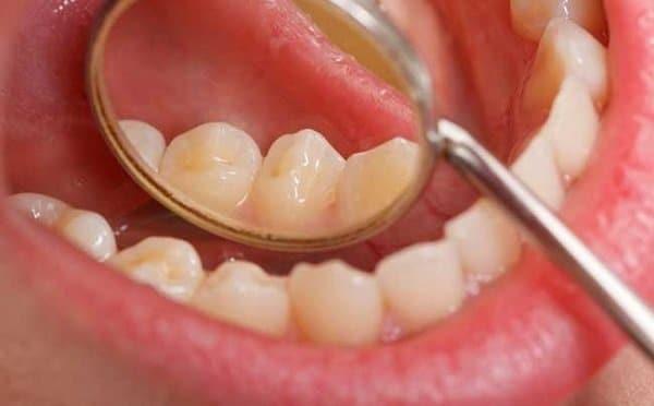Ung thư miệng có chữa được không