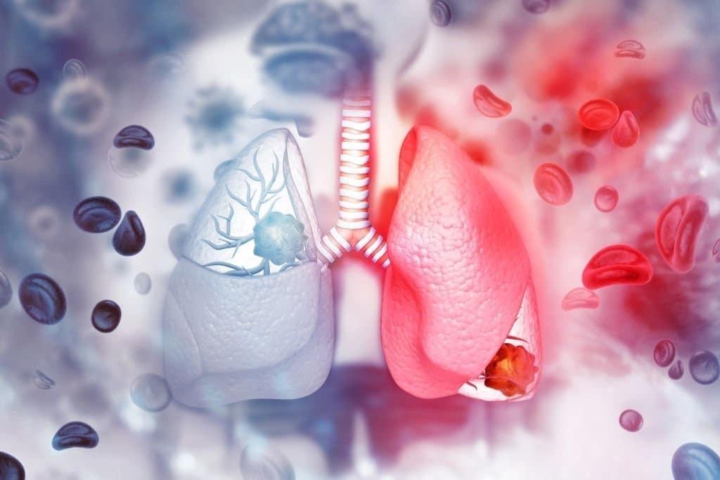 Ung thư phổi tế bào nhỏ có 2 giai đoạn chính: Giai đoạn hạn chế và giai đoạn mở rộng
