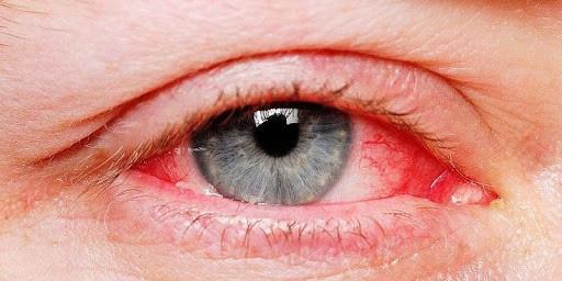 triệu chứng rách giác mạc
