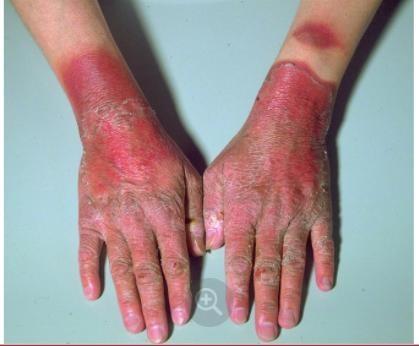 Triệu chứng thiếu vitamin B3 ở tay