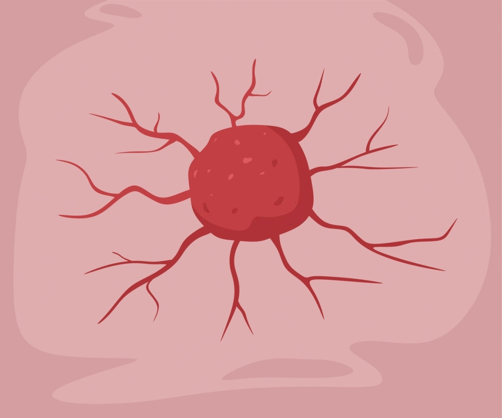 Vitamin K3 được chứng minh giết chết các tế bào ung thư của con người
