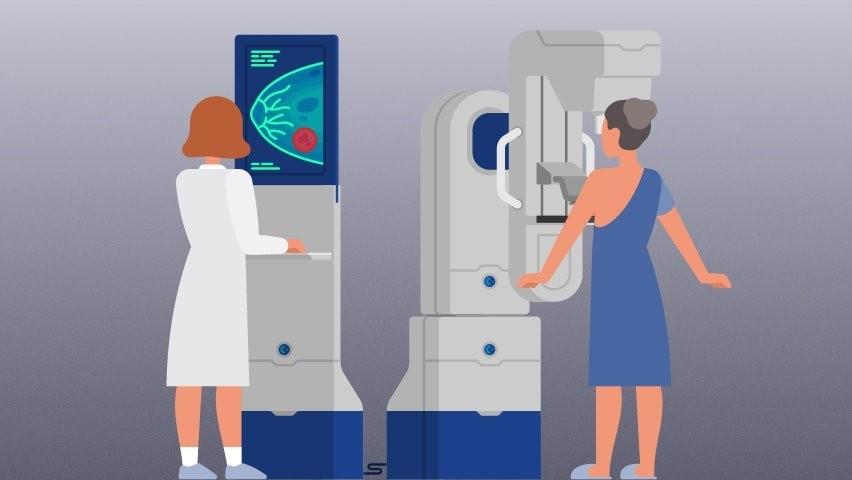 X quang chẩn đoán ung thư vú tái phát