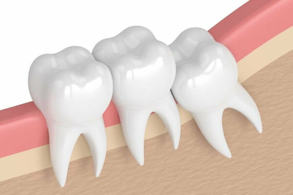 Có nên nhổ răng khôn?