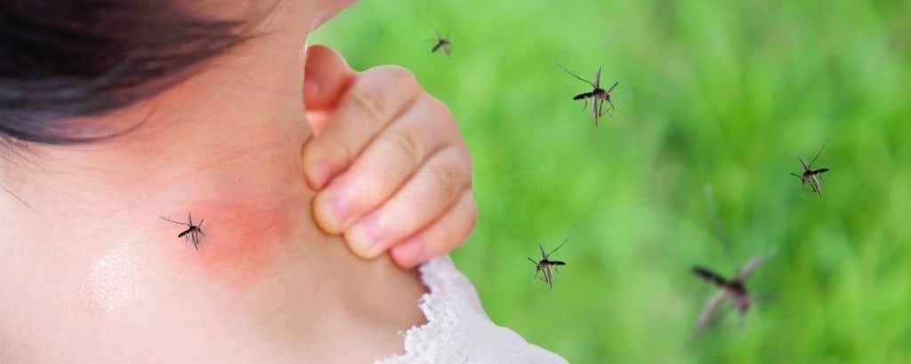Trẻ bị sốt xuất huyết qua vết muỗi đốt.