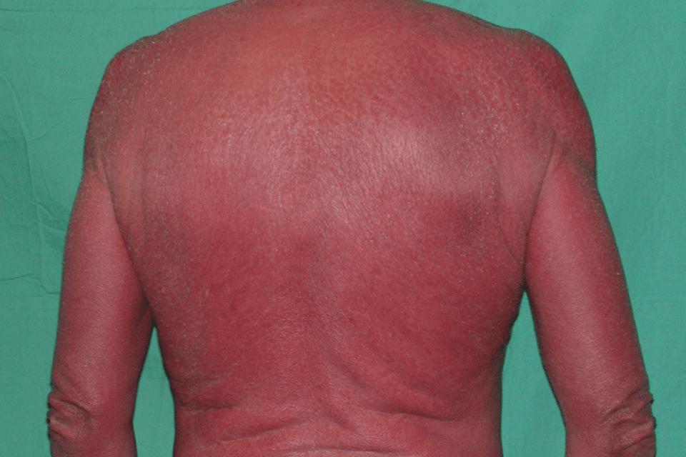 Bệnh viêm da tróc vảy hay đỏ da toàn thân