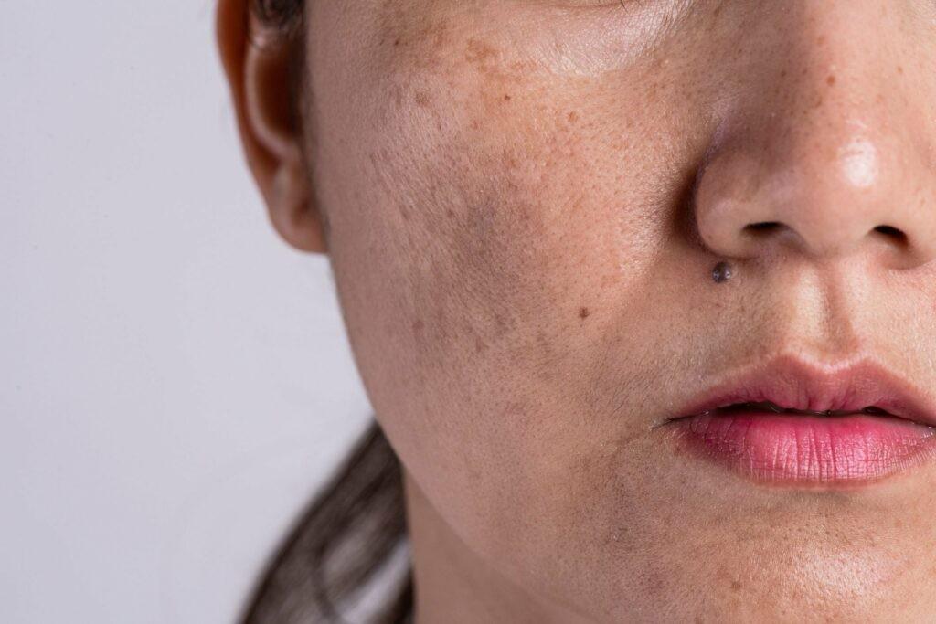 Nguyên nhân làm cho làn da sậm màu
