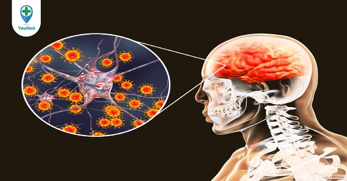 Chích ngừa viêm não Nhật Bản trễ có sao không