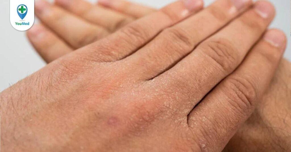 Các phương pháp giúp điều trị bệnh