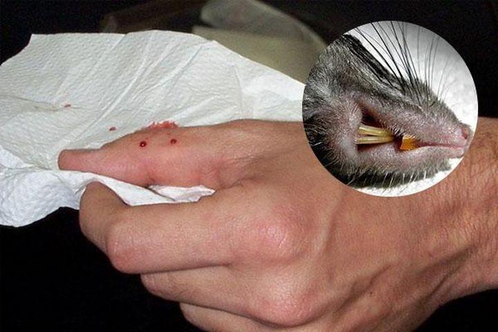 Nguy cơ nhiễm bệnh sau khi bị chuột cắn