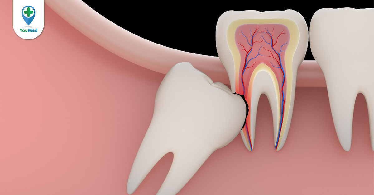 Nhổ răng khôn bệnh viện Răng Hàm Mặt TPHCM