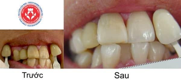 Tẩy trắng răng tại Bệnh viện Răng Hàm Mặt TPHCM