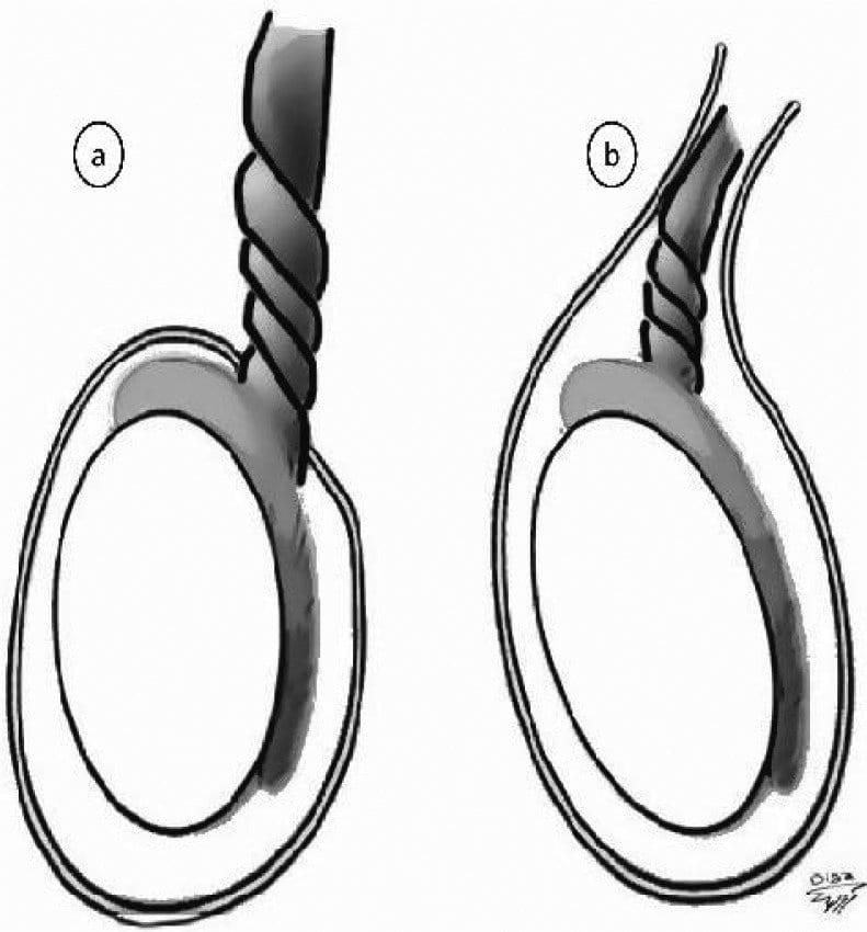 Xoắn tinh hoàn có thể gây ảnh hưởng đến kích thước tinh hoàn