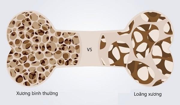 Loãng xương và gãy xương là biến chứng nguy hiểm của bệnh cường giáp Basedow