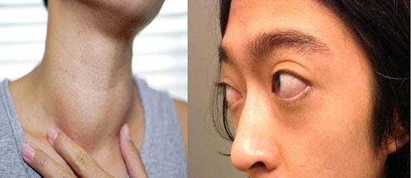 Một số triệu chứng của bệnh Basedow