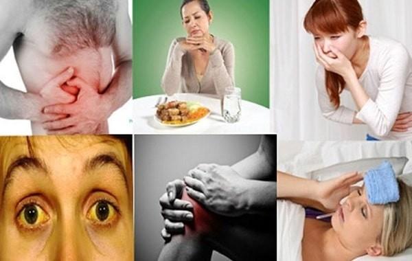 Các triệu chứng thường gặp của bệnh viêm gan A
