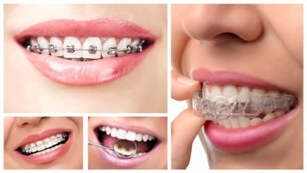 Các loại niềng răng tại bệnh viện Răng Hàm Mặt TPHCM