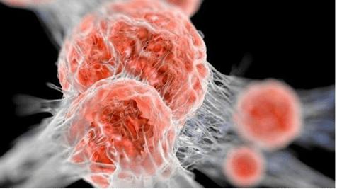 Ức chế sự phát triển khối u
