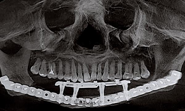 Hình chụp X-quang của bệnh nhân sau tái tạo