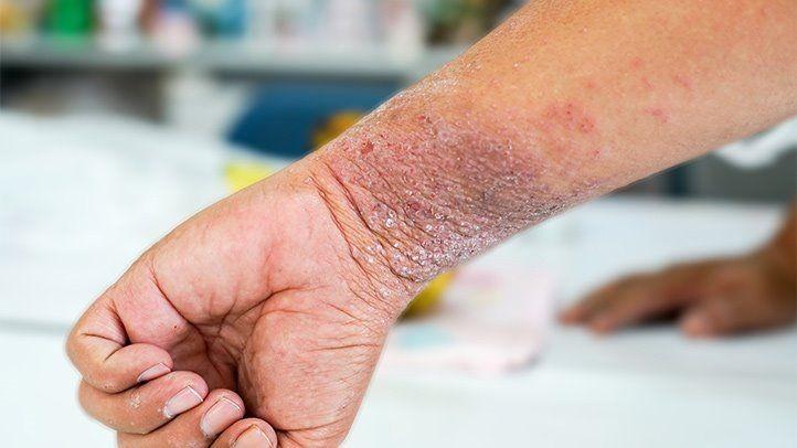 Bệnh viêm da cơ địa trong giai đoạn mạn tính