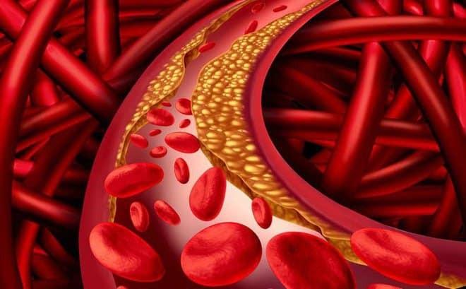 Hạt kê giúp ổn định mỡ máu,