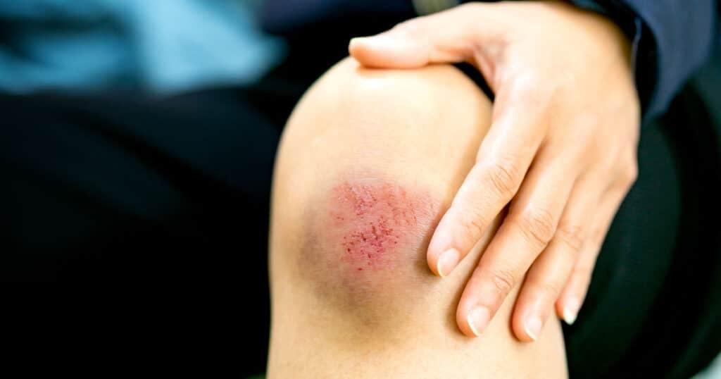 Đắp hạt ngũ hoa lên vết thương đòn ngã, có sưng viêm và bầm máu giúp nhanh lành vết thương.