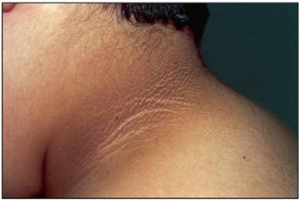 Sạm da thường thấy ở bệnh nhân tiểu đường