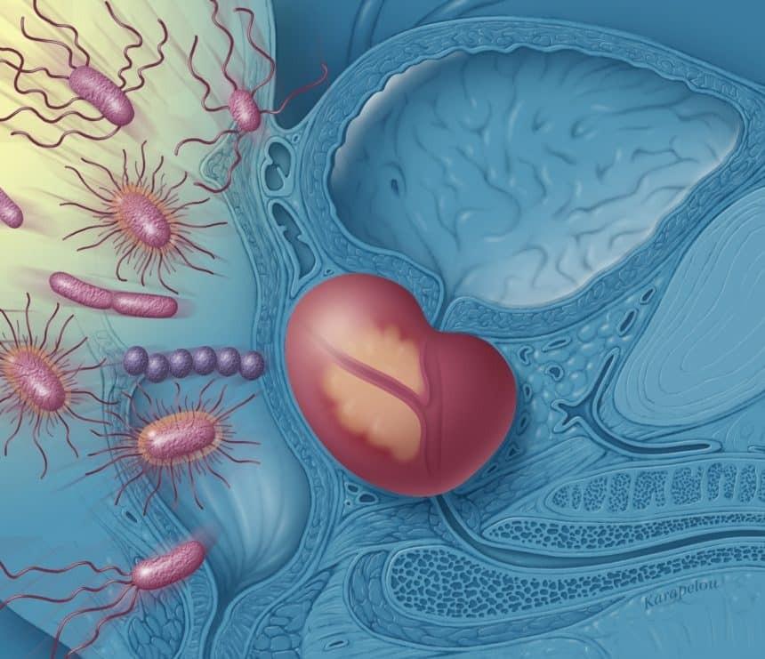 Vi khuẩn là nguyên nhân chính của viêm tuyến tiền liệt