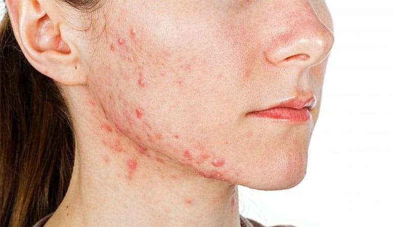 Tại sao bạn cảm thấy ngứa da mặt? Điều trị như thế nào để nhanh hết ngứa?