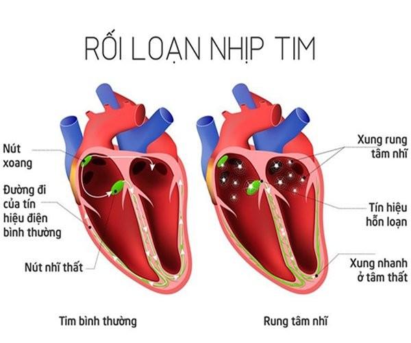 Những nguyên nhân gây rối loạn nhịp tim