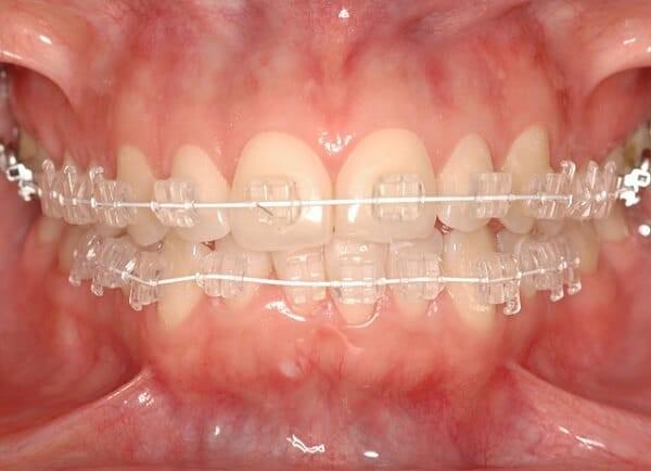 Răng sau khi gắn mắc cài