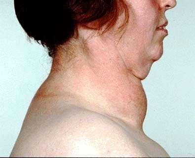 Bướu giáp to có thể gây biến dạng cổ