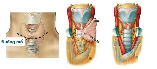Phẫu thuật cắt tuyến giáp trong điều trị bệnh Basedow