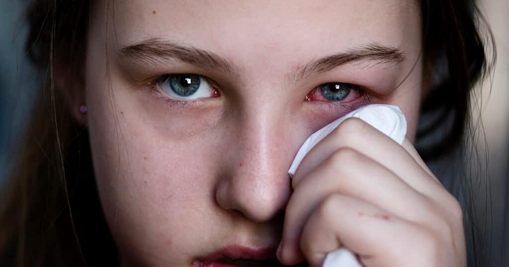 Triệu chứng của sẹo giác mạc