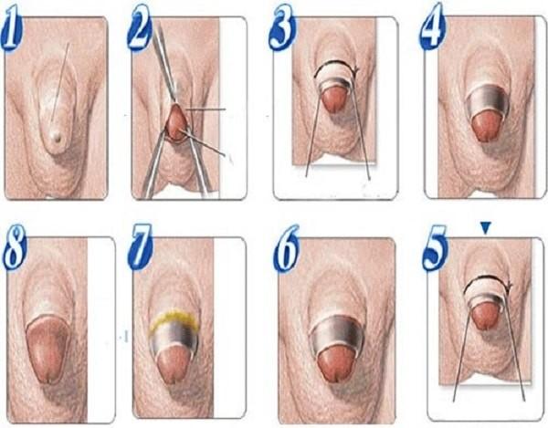 Quy trình phẫu thuật hẹp bao quy đầu