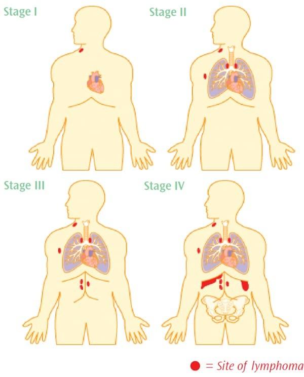 dấu hiệu ung thư hạch bạch huyết