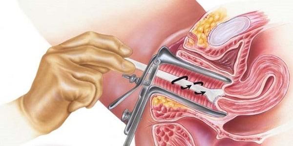 Tầm soát ung thư cổ tử cung bằng phương pháp Pap
