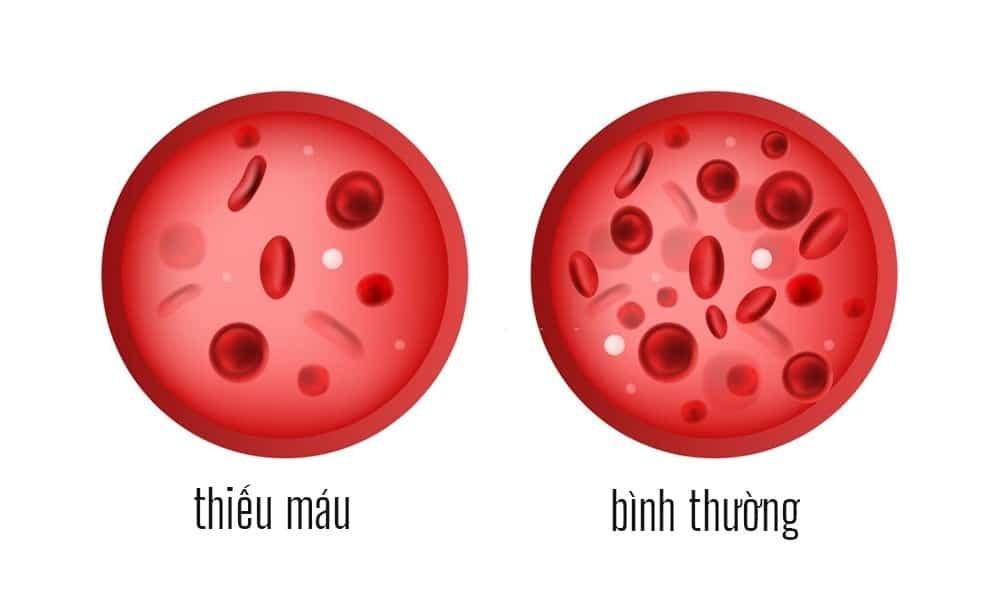 Cơ thể cần sắt để tạo ra hemoglobin đưa oxy đi khắp cơ thể